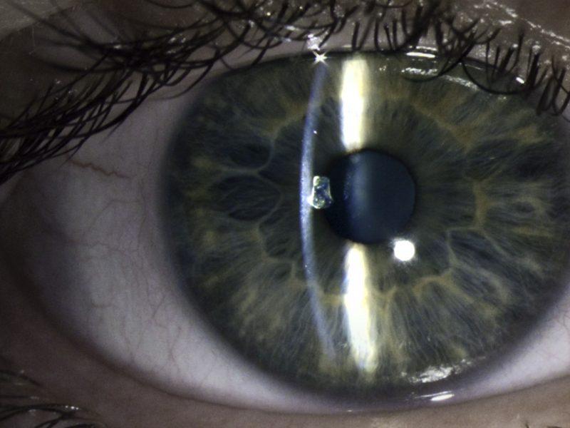 Slit Lamp Eye